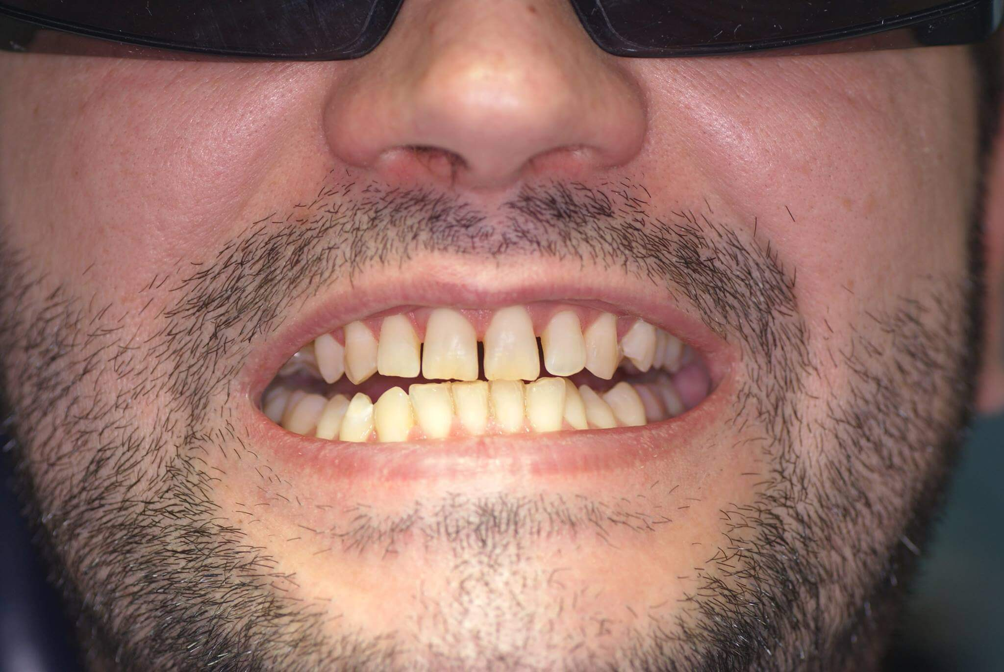 лаки для отбеливания зубов
